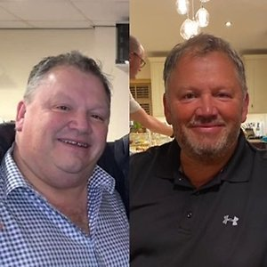 What my clients have to say. Richard before & after